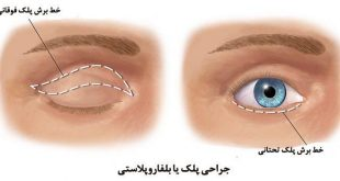 blepharoplasty-surgery