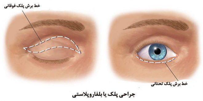blepharoplasty-surgery