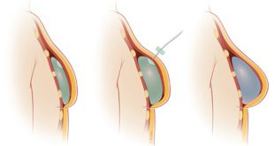 prosthesis-breast